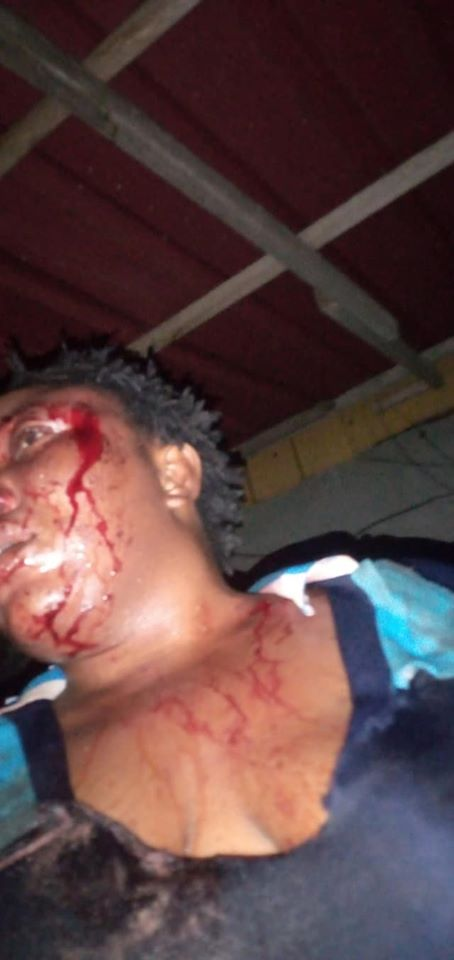 Man Brags about Beating Wife to a Pulp, Posts Her Photos on Facebook 1