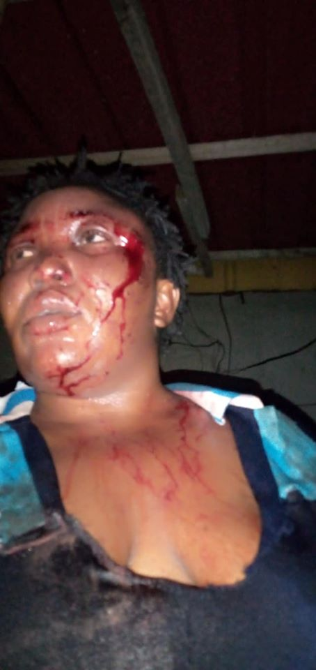 Man Brags about Beating Wife to a Pulp, Posts Her Photos on Facebook